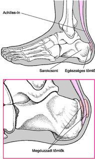 ízületi sérülések hogyan kezelhető
