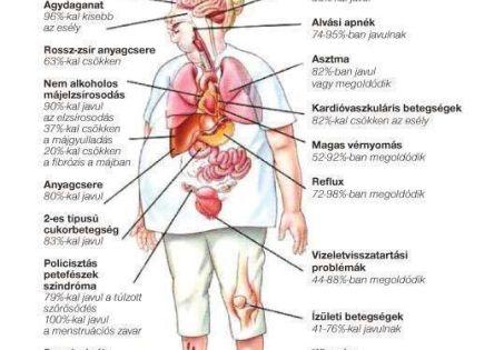 fáj a bal térd csípőgyulladás kezelésére szolgáló gyógyszer