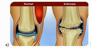 melegítse az ízületet artrózissal mi a térd ízületi gyulladása és hogyan kell kezelni