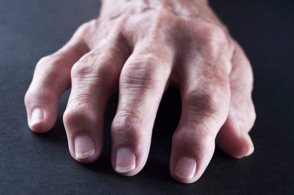 égő fájdalom a kéz ízületeiben