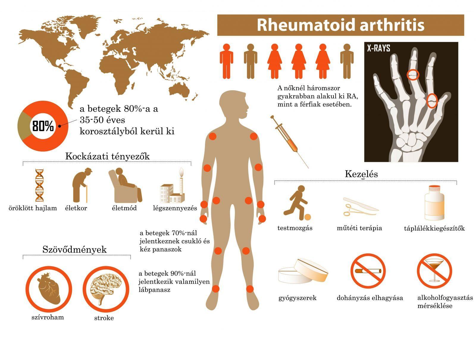 az alsó végtagok rheumatoid arthritisének kezelése