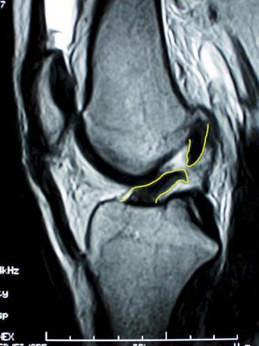 a trofimov térdkárosodás mr diagnosztizálása