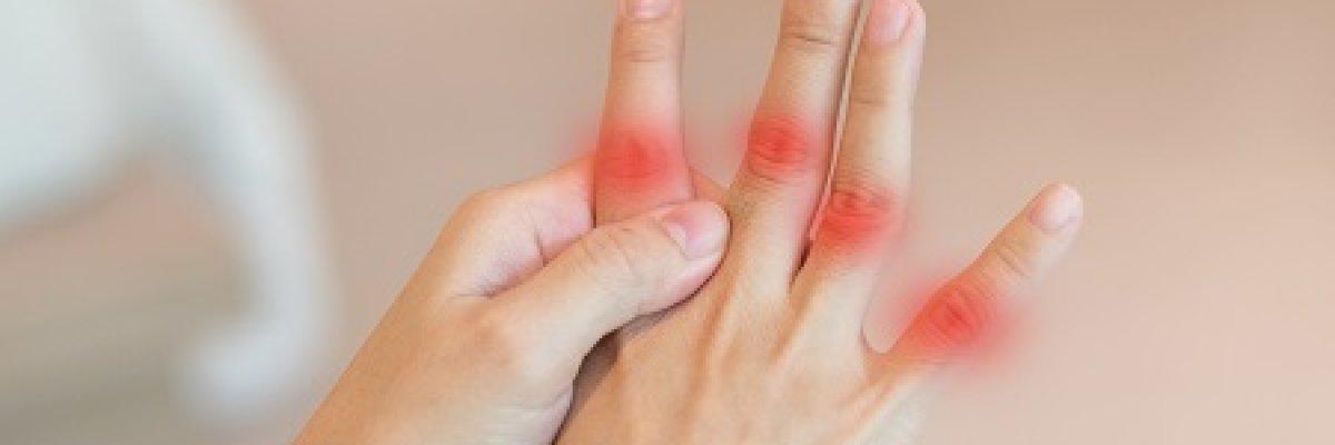 a neurológus az artrózist kezeli ízületi iratkezelés