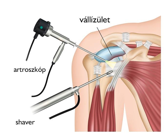 milyen injekciókat adnak a vállízület fájdalmaihoz éles fájdalom a csuklóízületben