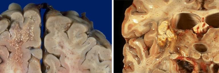 cikloferon ízületi betegség esetén