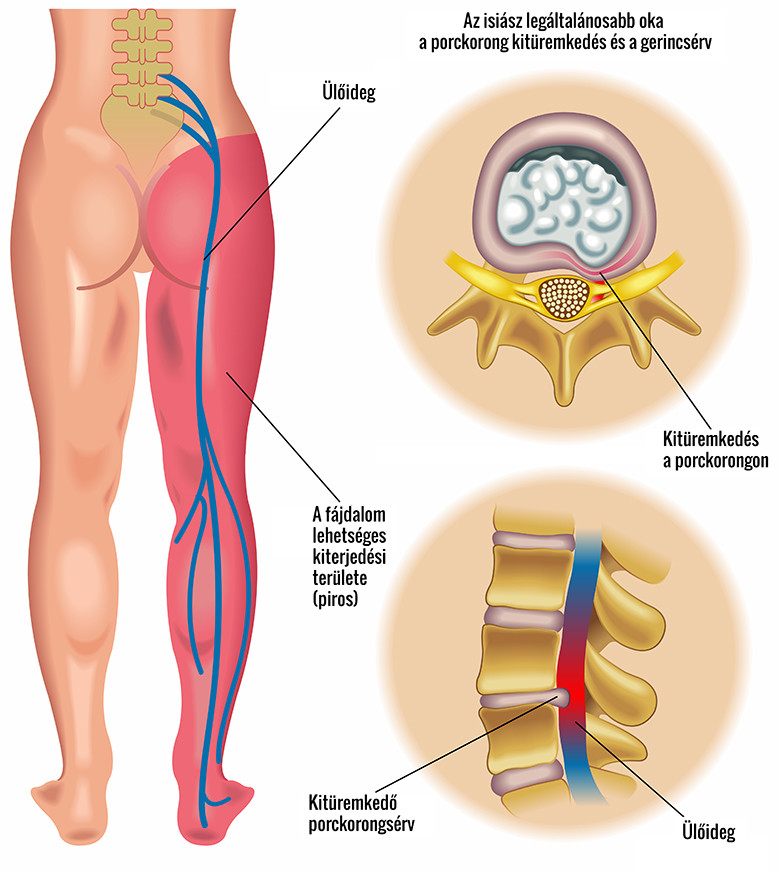 csípőízületi fájdalom homeopátia ízületi lézer
