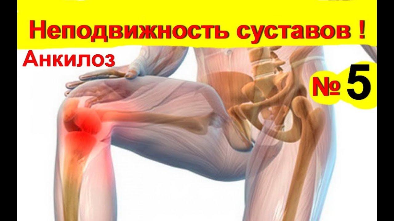 miért a csípőízület fájdalma artrózis kezelése fenyőolajjal