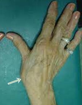 mindkét kéz hüvelykujja fáj