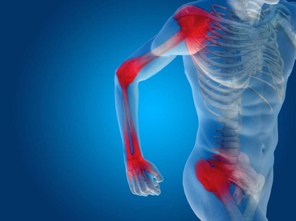 gyógyszerek ízületi gyulladások kezelésére gyógynövények artrózis és ízületi gyulladás kezelésére