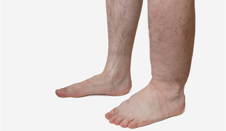 fájdalom és duzzanat a lábak ízületeiben