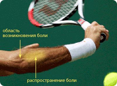 fájdalom a röplabda játékosok vállízületében mi a csípőízület 1. fokának artrózisa