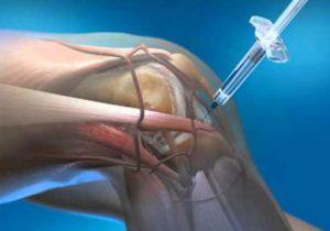 kezdeti artrózis gyógyszerek kezelése