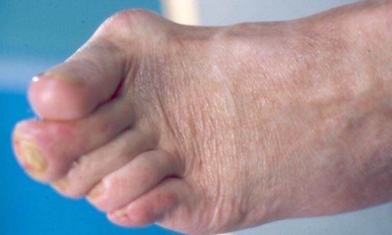 Lúdtalp vagy lapos láb (befelé dőlő bokák)   Pasamed
