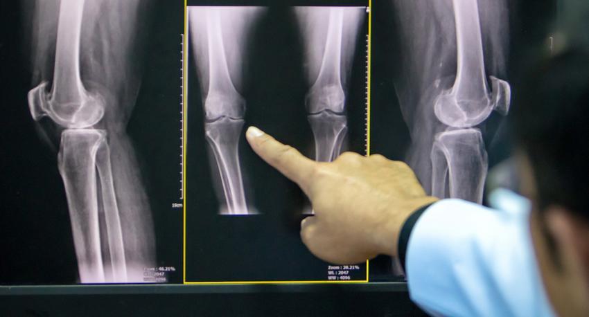artrózis a térd kezelésében a térd artrózisa helyes kezelés