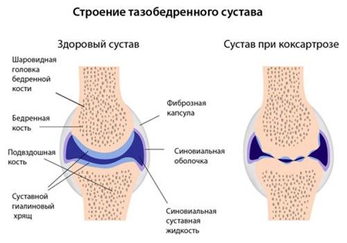 2 fokos csípőízület osteochondrozis