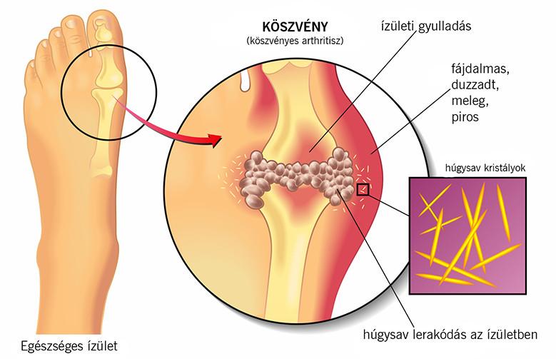 ízületi gyulladásos artrózis kezelésének jelei
