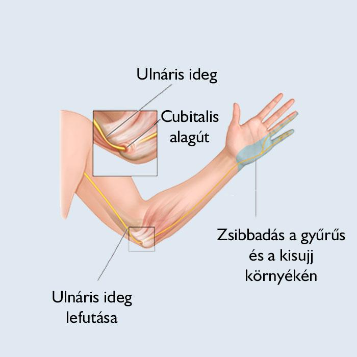 fájdalom a karban a könyökízület törése után