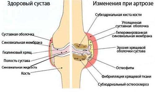 Térdízületek ízületi gyulladása hogyan lehet enyhíteni a fájdalmat ,a hátfájás nem tud lélegezni