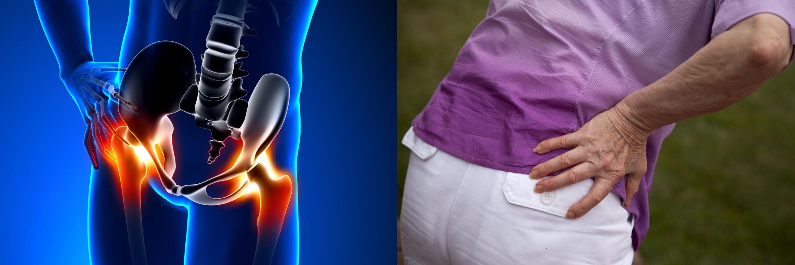 3. fokú deformált artrózis kezelése