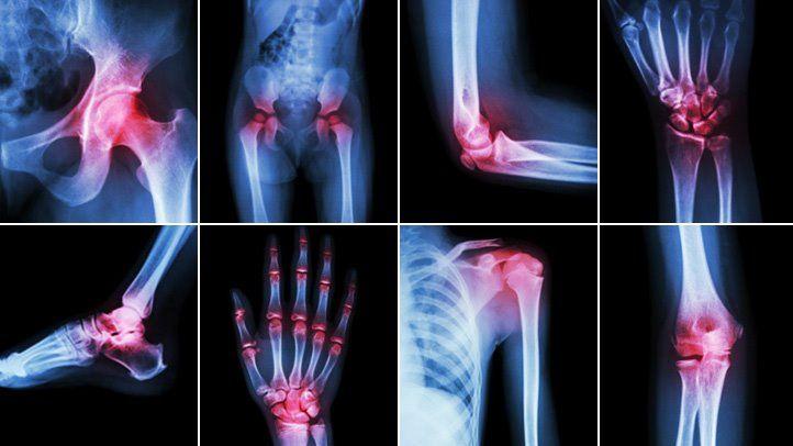 Osteoarthritis Arthritis kezelése a jobb boka - Osteoarthritis kezelése a jobb bokaízület