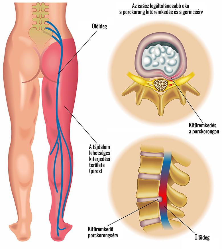 fájdalom a medence bal lábának ízületében