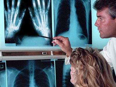 milyen gyógyszereket használnak az artrózis kezelésére gonartrózis és a térd ízületi gyulladása