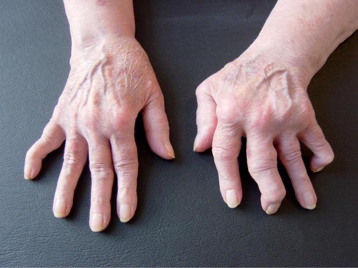 térdkészítmények deformáló osteoarthrosisa