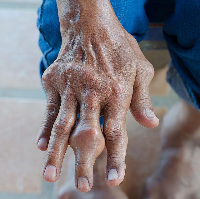 az öreg embernek ízületi fájdalma van