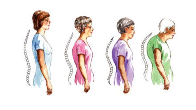 artrózis kezelése csontritkulással