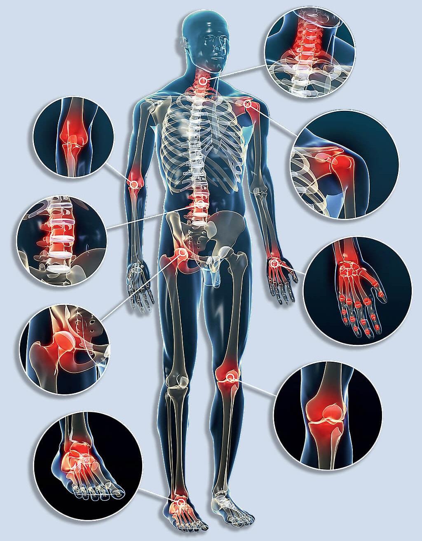 tinktúrák gerinc és ízületek betegségeihez a 2. fokú artrózis kezelésének menete