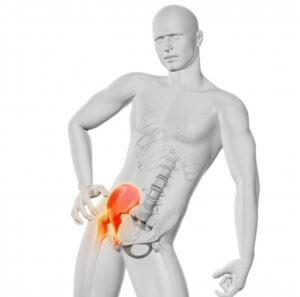 fájdalom a csípőízület coxarthrosisában