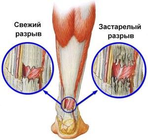 gyógyítja a térdrándulást gyógynövények izületi fájdalmakra
