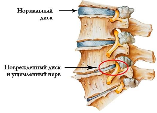 Repedés csípő fáj, és miért csikorog