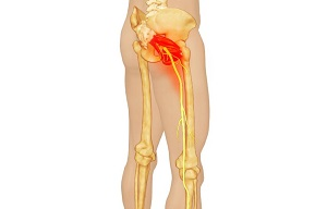 csípőízület tünetei és kezelési gyakorlatok gőzfürdő izületi fájdalmak kezelésére