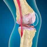 térdízület kezelése gonarthrosis artrosisban