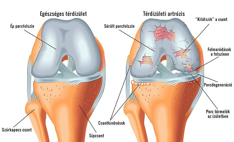 Porcfelszín károsodások (porckopás, artrózis)   Pasamed