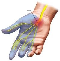 A csukló alagútszindrómája (carpal tunnel syndroma)