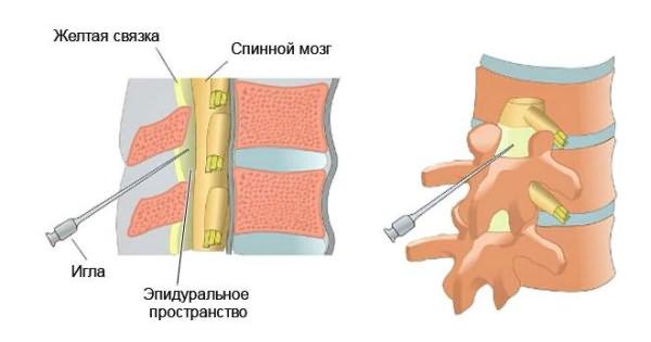 A nyaki osteochondrosis kezelése otthon