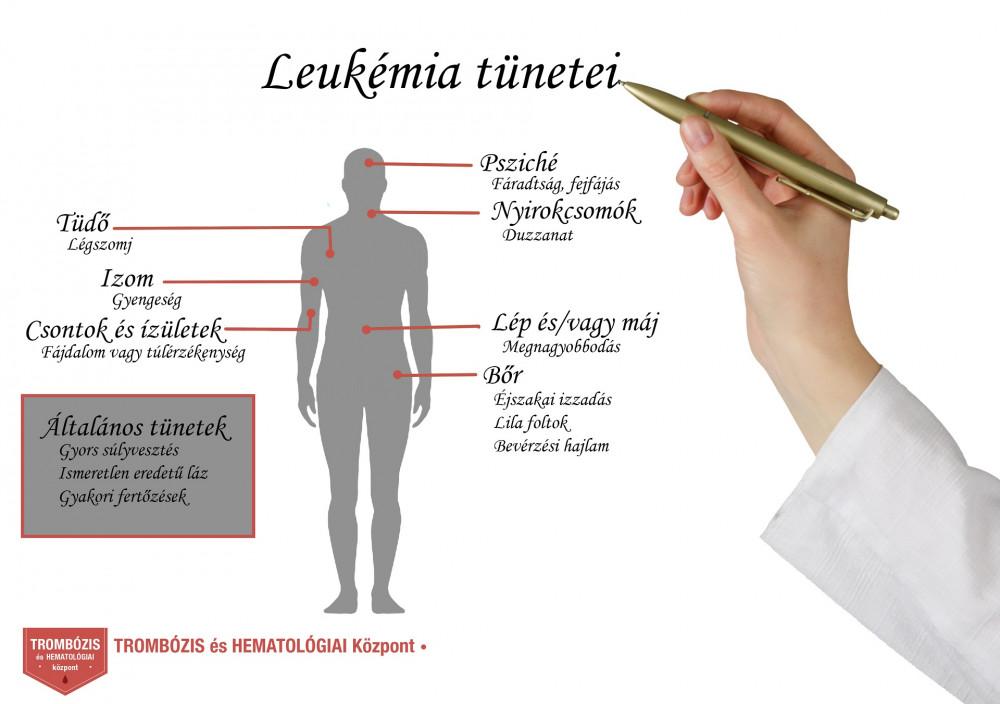 ízületi fájdalom leukémiával ízületi gyulladás térdízület kezelési tabletták áttekintés