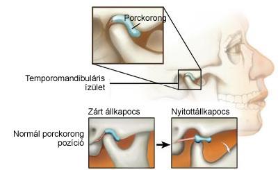 Botox kezelések | Professio Plasztika Budapest