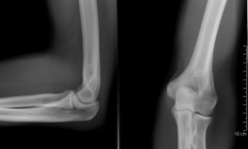 Ortopédia jegyzet | kontrel.hu
