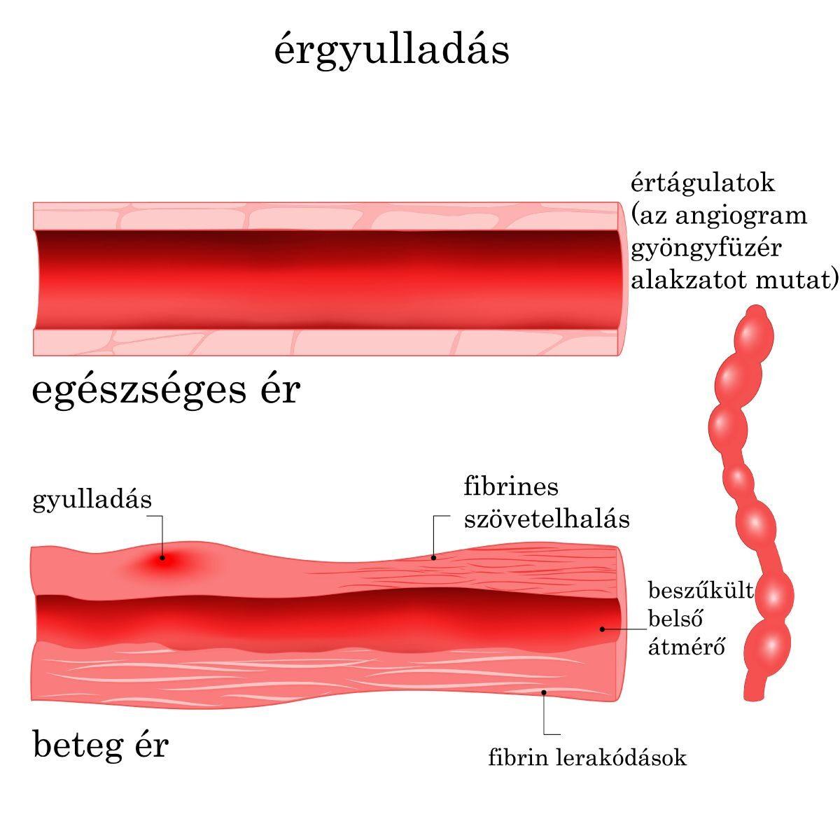 térd vasculitis kezelés