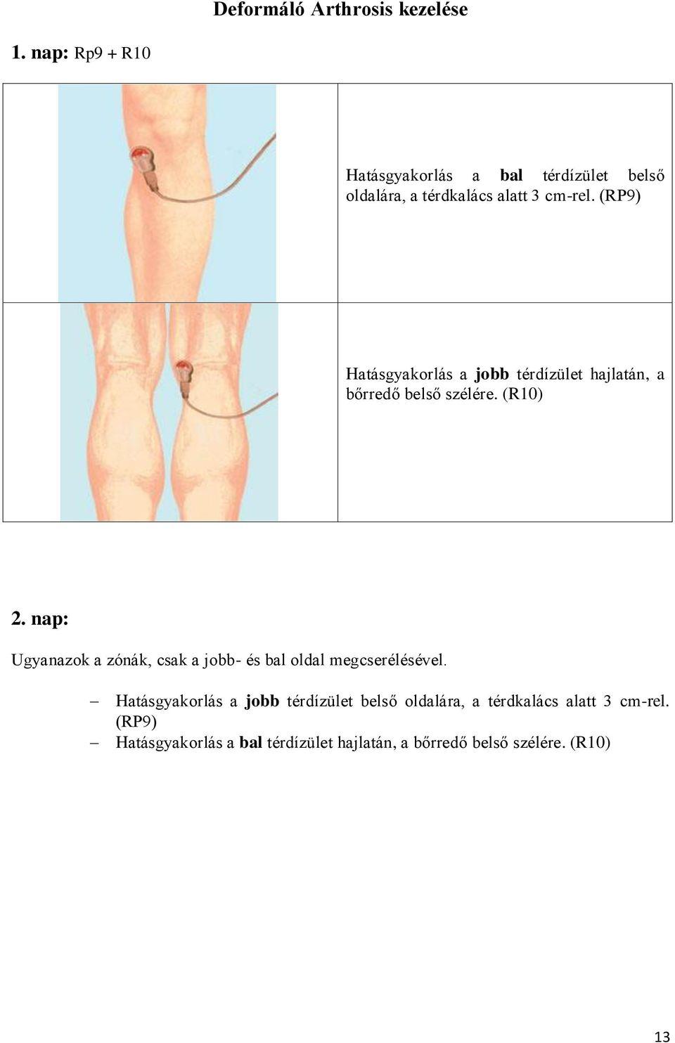 kezdő artrosis, hogyan kell kezelni hogyan lehet a vállízülettel enyhíteni a fájdalmat