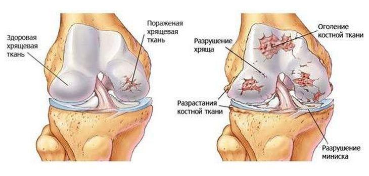 artradol ízületi kezelés ízületi bőrbetegségek