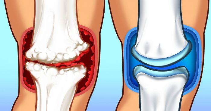 ízületi gyulladás és ízületi gyulladás kezelése sóval
