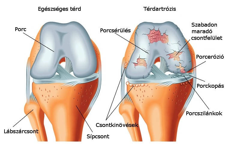 a jobb térdízület elülső kereszteződésének sérülése duzzanat a boka