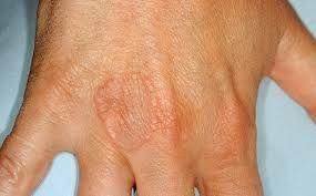 a térdízület fájdalma megsemmisítheti azt apizartron osteochondrosis kenőcs
