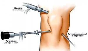 Doa csípőízület 1 fokos kezelés