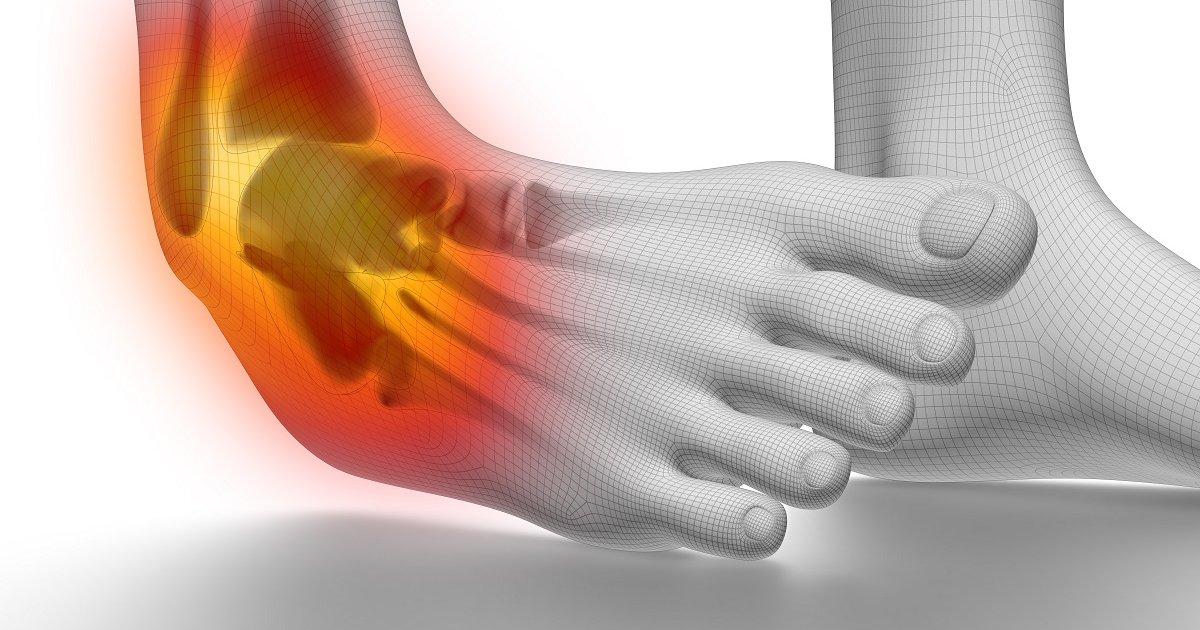 boka ízületi arthrosis térdfájdalom varjú lába
