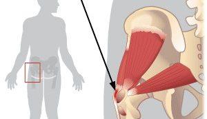 fájdalom tünetei az ízületi ízületben